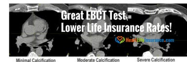 life insurance atherosclerosis EBCT scan arteriosclerosis life insurance approvals